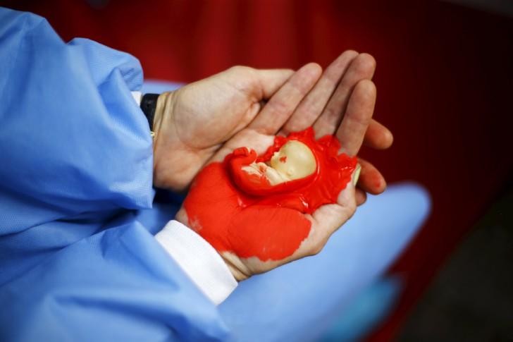 Как делают медикаментозный аборт и чем это опасно
