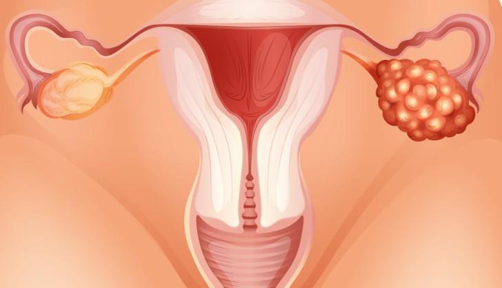 Может ли внематочная беременность выйти сама месячными. Может ли быть менструация при внематочной беременности