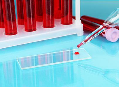 На какой день цикла сдавать анализ на пролактин женщине?