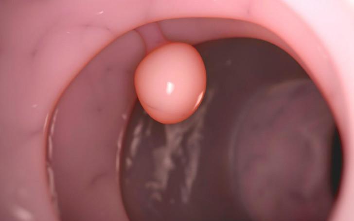 Плацентарный полип после родов или медаборта: симптомы и лечение, возможные осложнения